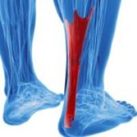 Воспаление ахиллесова сухожилия