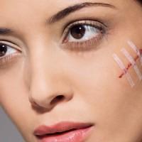 Кинезио тейп для лечения ран и шрамов