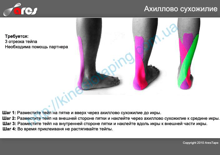 Лечение ахиллита методом кинезиотейпирования : Купить кинезио ленту ARES