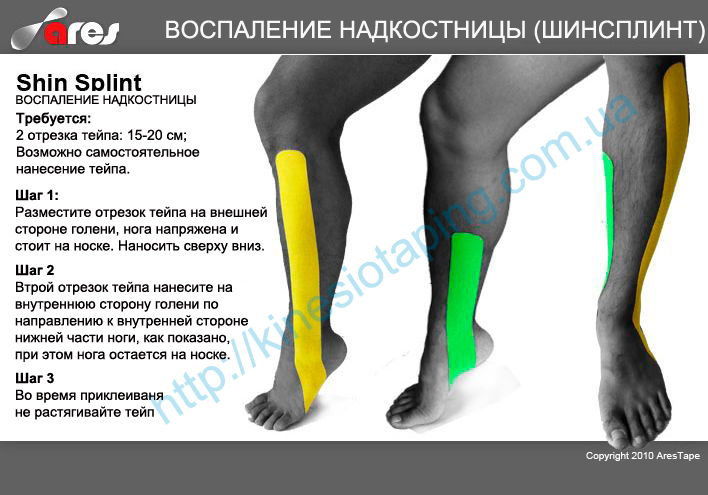 Лечение воспаления надкостницы методом кинезиотейпинга : Купить кинезиологическую ленту в Киеве