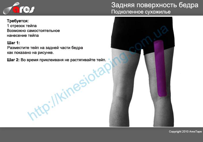 Лечение мышц задней поверхности бедра методом кинезиотейпирования : Купить кинезио тейп производства корея