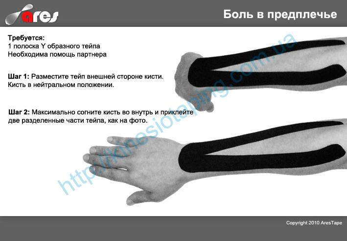 Лечение боли в предплечье методом кинезиотейпирования : Купить кинезиотейп если болит предплечье