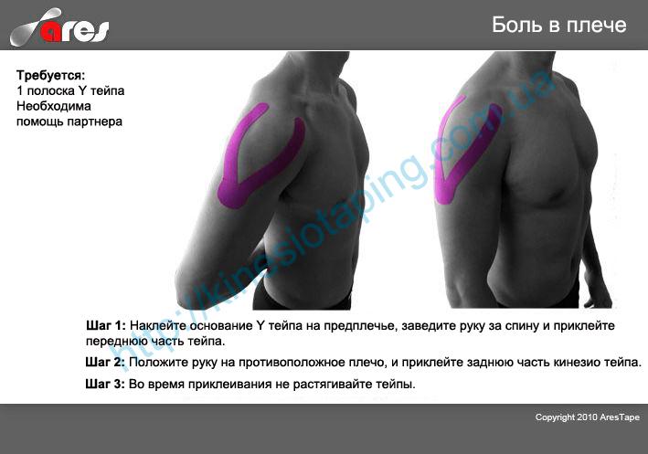 Лечим больное плечо методом кинезиотейпирования : Кинезио тейп снимет боль в плече