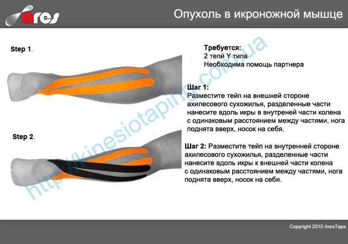 Снятие отека икроножной мышцы методом кинезиотейпирования : Купить кинезио пластырь
