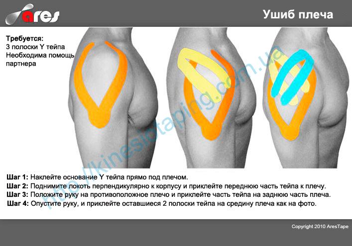 Ушиб плеча: насколько это серьезно : Снимет боль при ушибе плеча кинезио тейп