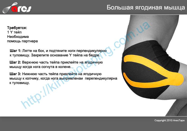 Лечение боли ягодичных мышц методом кинезиойтепирования : Купить кинезио тейп во Львове