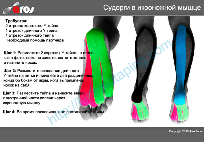 Снятие и лечение судороги икроножной мышцы методом  кинезиотейпирования  : Купить кинезио ленту эластичную