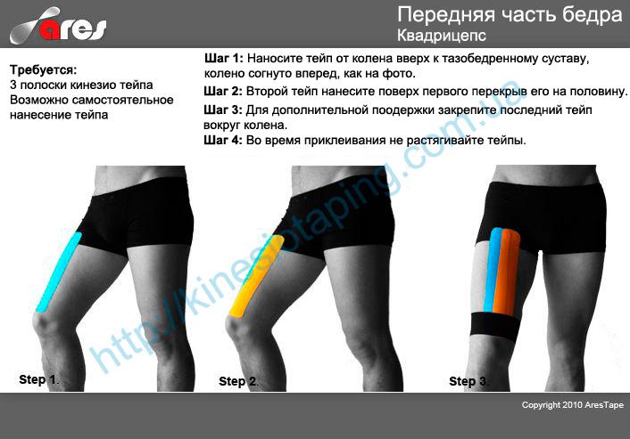 Лечение растяжение мышц бедра методом кинезиотейпинга : Кинезио тейп если болят мышцы бедра