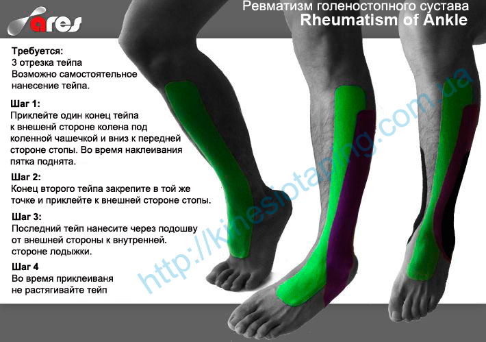 Лечение артрита голеностопного сустава методом кинезиотейпирования
