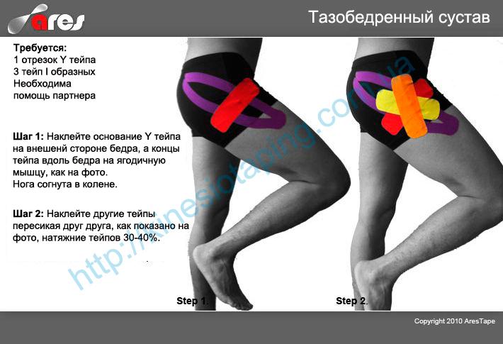 Лечения боли в тазобедренном суставе методом кинезиотейпирования : Купить kinesio tape Киев