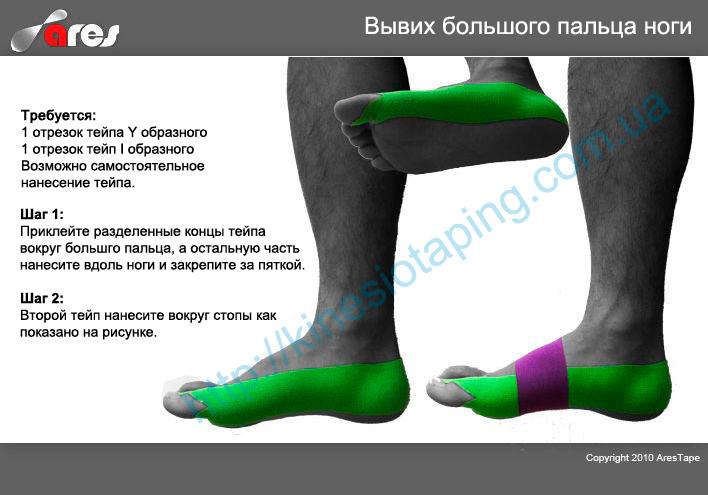 Лечения травм и ушибов большого пальца ноги методом кинезиотейпирования : Купить кинезио тейп Kindmax