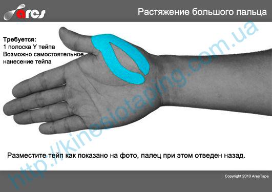 Лечение вывиха пальца руки методом кинезиотейпирования : Вывих пальца лечит кинезио тейп