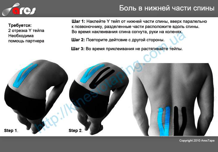 Лечение боли внизу спину методом кинезиотерапии : Купить кинезио тейп производства Корея