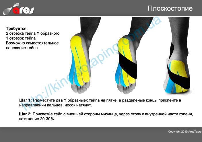 Лечение плоскостопия методом кинезио тейпирования : Купить kinesio tape в Украине