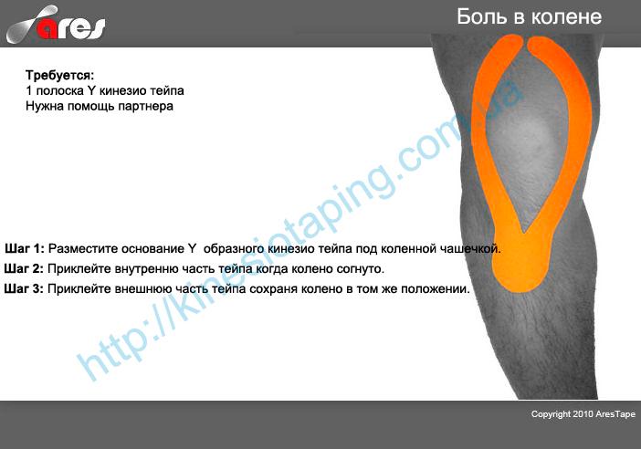 Боль в колене лечим методом кинезиотейпирования : Болит колено - купи кинезио тейп