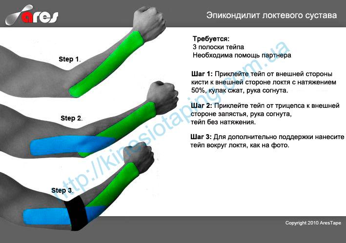 Эпикондилит локтевого сустава лечит кинезио тейп : Купить kinesio tape