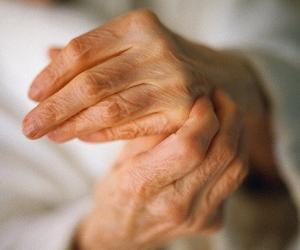 Лечение артроза пальцев рук методом кинезиотейпирования : Купить kinesio tape