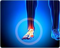 Лечение боли в голеностопном суставе кинезио тейпом : Универсальный метод кинезиотейпирования при боли в голеностопном суставе