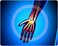 Лечение боли в лучезапястном суставе кинезио тейпом : Универсальный метод кинезиотейпирования при боли в кисти