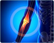 Лечение боли в локтевом суставе кинезио тейпом : Универсальный метод кинезиотейпирования при боли в локтевом суставе