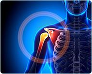Лечение боли в плече кинезио тейпом : Универсальный метод кинезиотейпирования при боли в плече