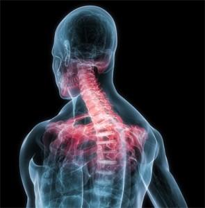 Лечение боли в области шеи и плеча методом кинезиотейпирования : Купить кинезио тейп в Херсоне
