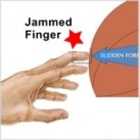 Кинезио тейп для лечения выбитого пальца