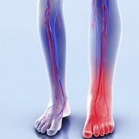 Боль при отечности икроножной мышцы